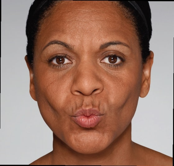 Before-Σουφρωμένα Χείλη